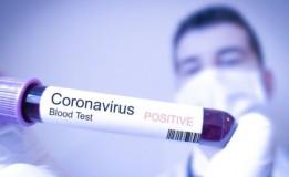Deteksi Virus Corona Dengan Stelop IFSS4 Mass Fever Thermal Imaging